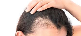 best hair regrowth treatment clinic in bhubaneswar close to apollo hospital