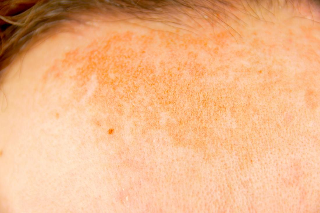 best hyperpigmentation on forehead on skin treatment clinic in bhubaneswar, odisha