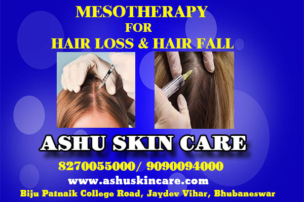 best mesotherapy for hair loss and hair fall clinic in bhubaneswar near capital hospital