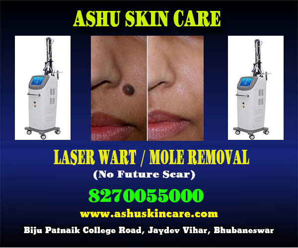 best mole removal clinic in bhubaneswar close to sum hospital