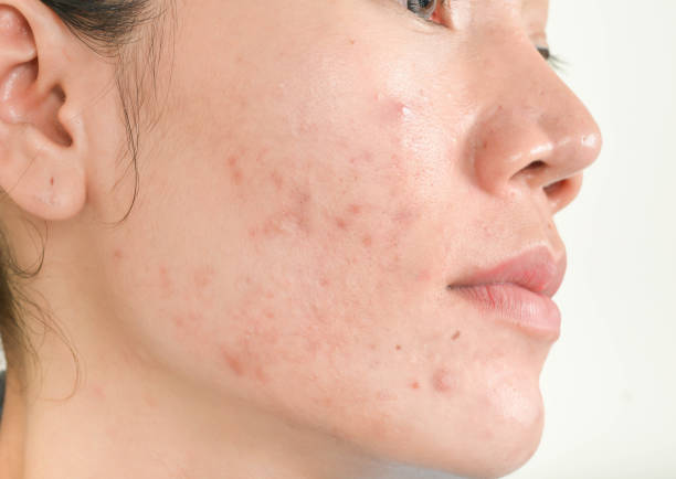 best pimples treatment clinic in bhubaneswar close to kims hospital