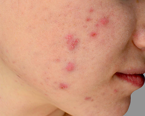 best pimples treatment clinic in bhubaneswar, odisha