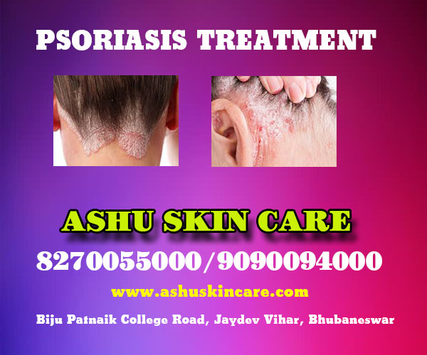 best psoriasis of scalp treatment clinic in bhubaneswar near me