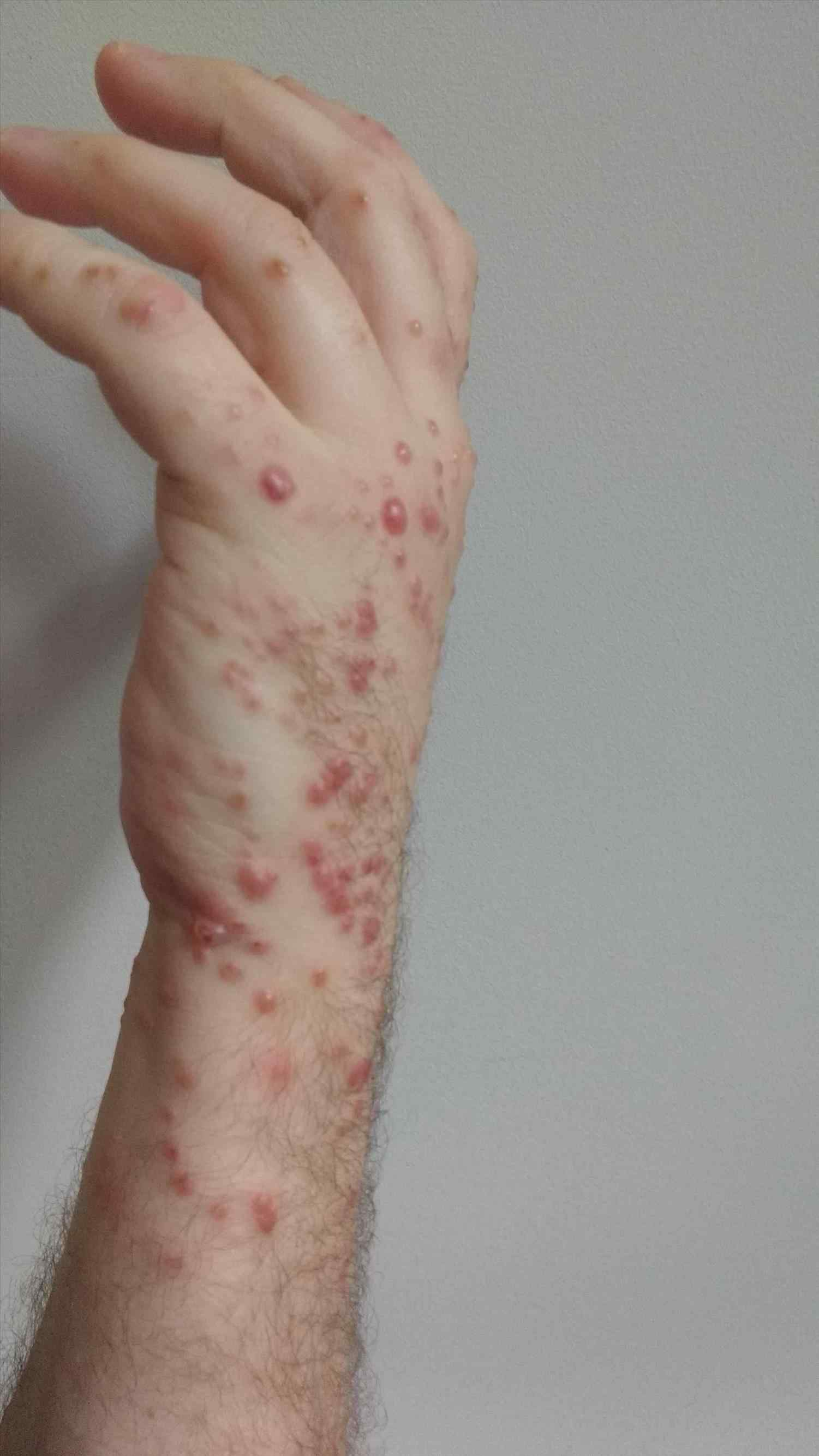 best scabies treatment clinic in bhubaneswar near me
