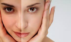 best skin tan removal clinic in bhubaneswar near by aditya care hospital