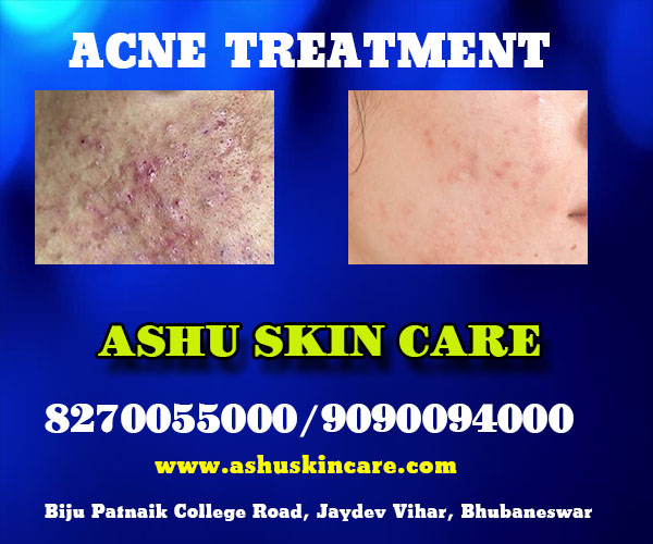 best acne and pimple treatment clinic in bhubaneswar close to kar hospital