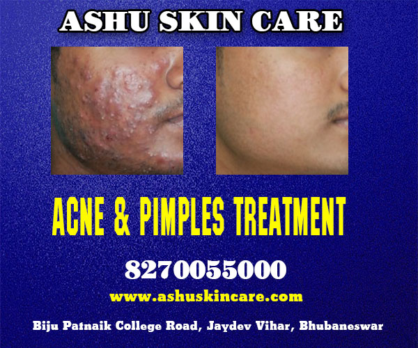 best acne and pimples treatment clinic in bhubaneswar near ayush hospital