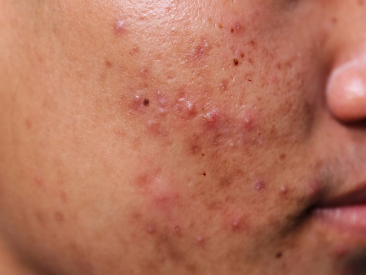 best acne and pimples treatment clinic in bhubaneswar near kalinga hospital