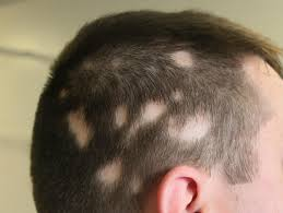 best alopecia treatment clinic in bhubaneswar close to aiims hospital