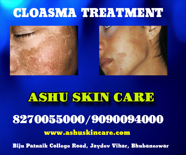 best chloasma treatment clinic in bhubaneswar close to apollo hospital