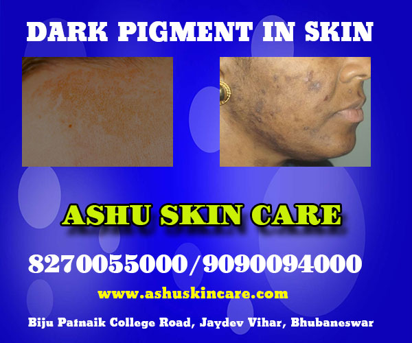best dark pigment treatment clinic in bhubaneswar close to apollo hospital