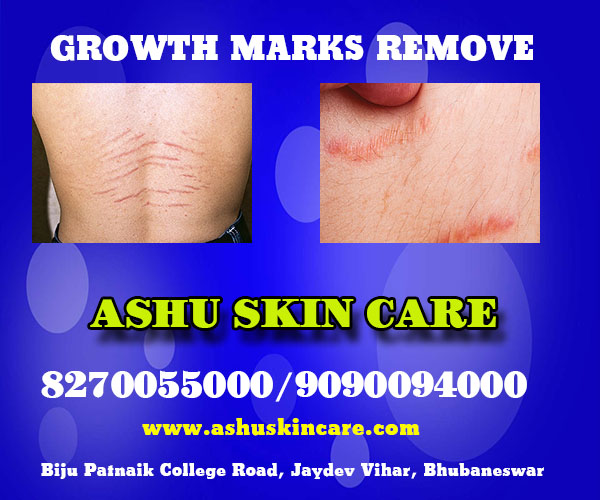 best growth marks remove treatment clinic in bhubaneswar near me
