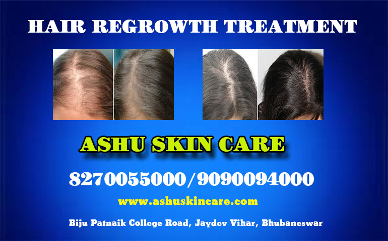 best hair regrowth treatment clinic in bhubaneswar clos e to kalinga hospital