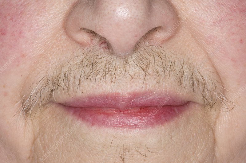best hirsutism treatment clinic in bhubaneswar near sum hospital