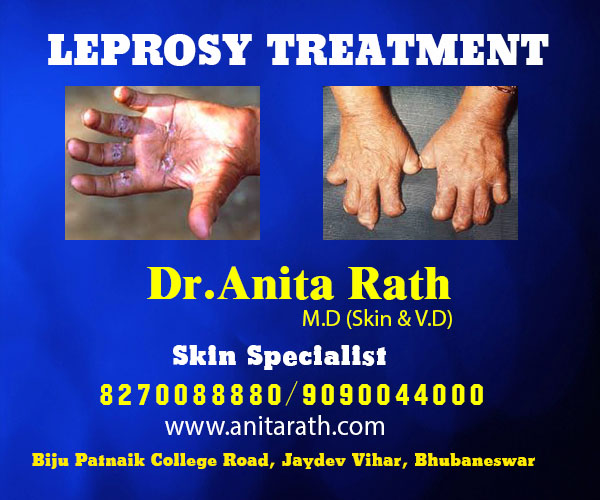 best leprosy treatment clinic in bhubaneswar close to sum hospital