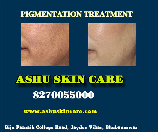 best pigmentation treatment clinic in bhubaneswar close to kims hospital