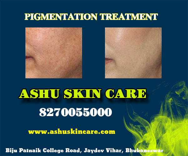 best pigmentation treatment clinic in bhubaneswar near me