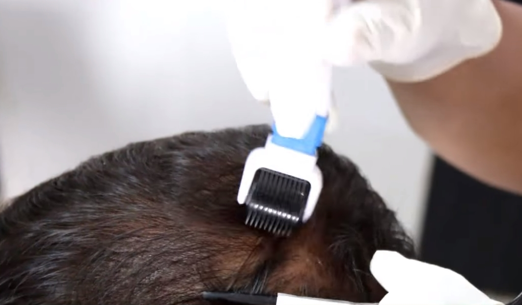 derma roll hair treatment clinic in bhubaneswar close to amri hospital