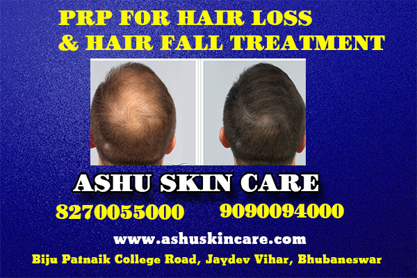 prp for hair loss and hair fall treatment clinic in bhubaneswar near me