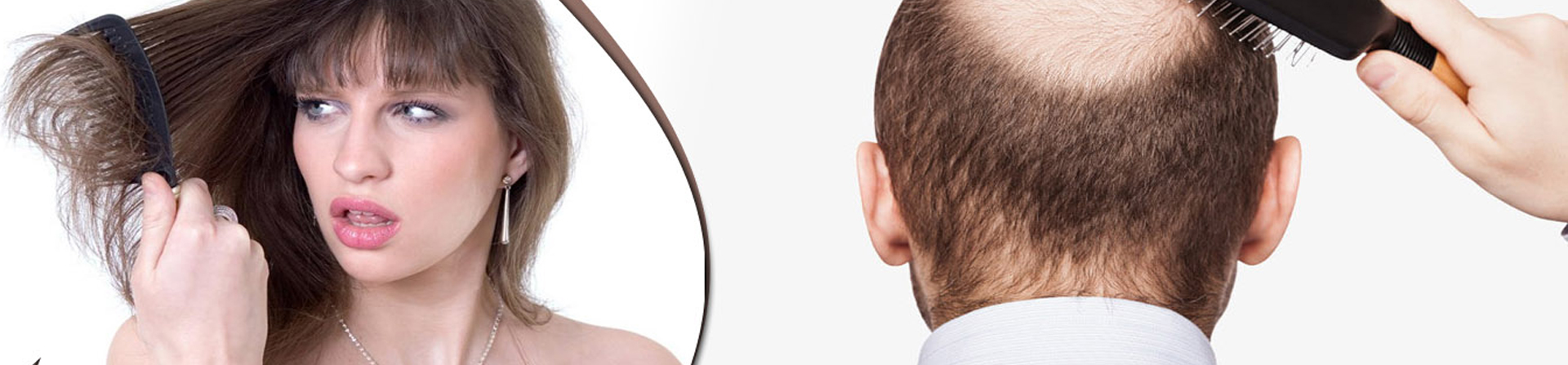 Best Hair Treatment Clinic in Odisha