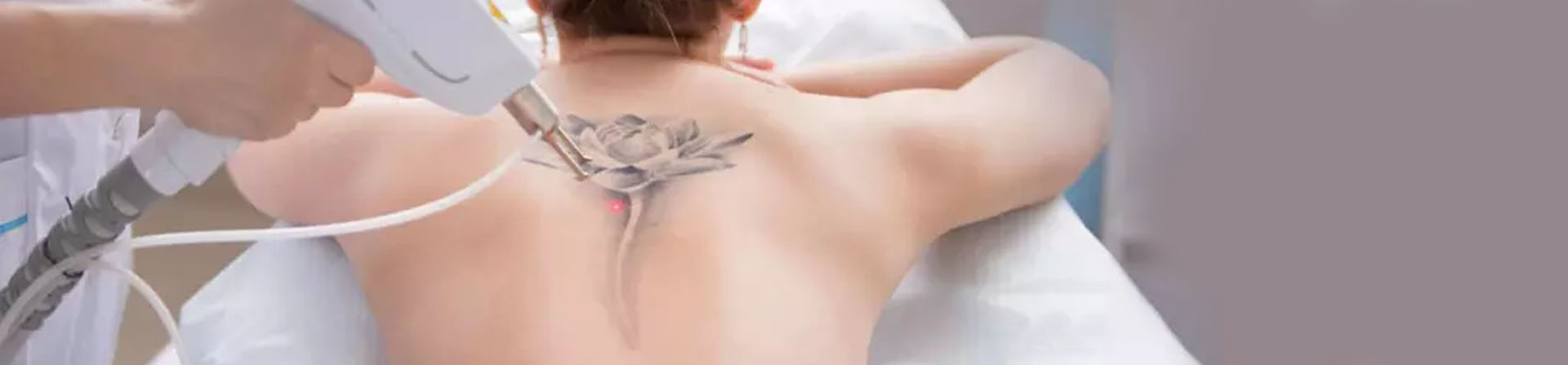 Best Laser Tattoo Removal Clinic near Apollo Hospital