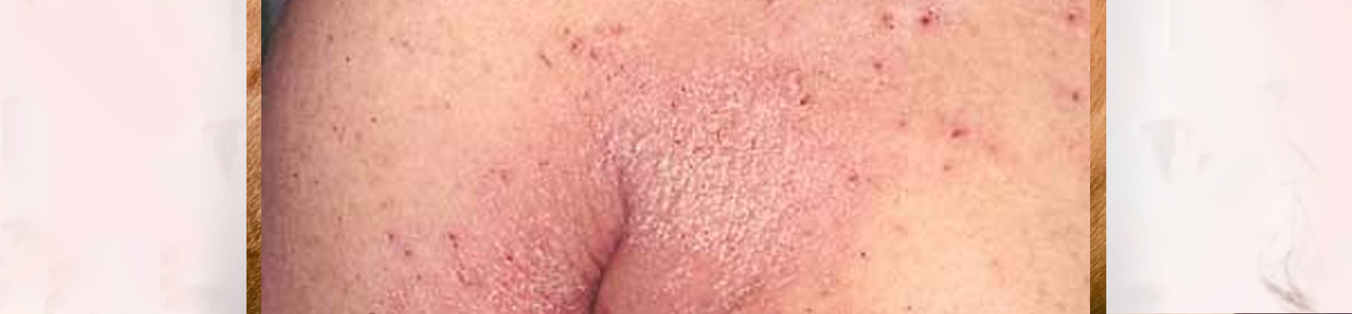 Best Scabies Treatment Clinic in Bhubaneswar
