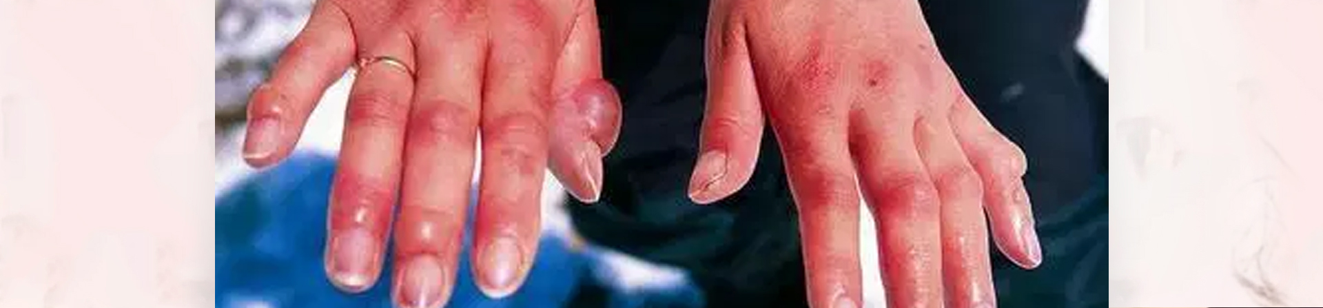 Best Leprosy Treatment Clinic in Odisha
