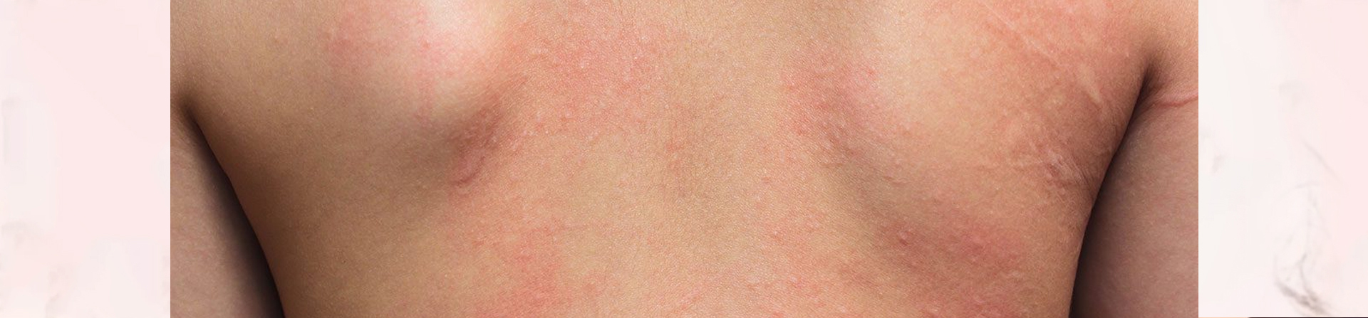 Best Contact Dermatitis Treatment Clinic in Bhubaneswar