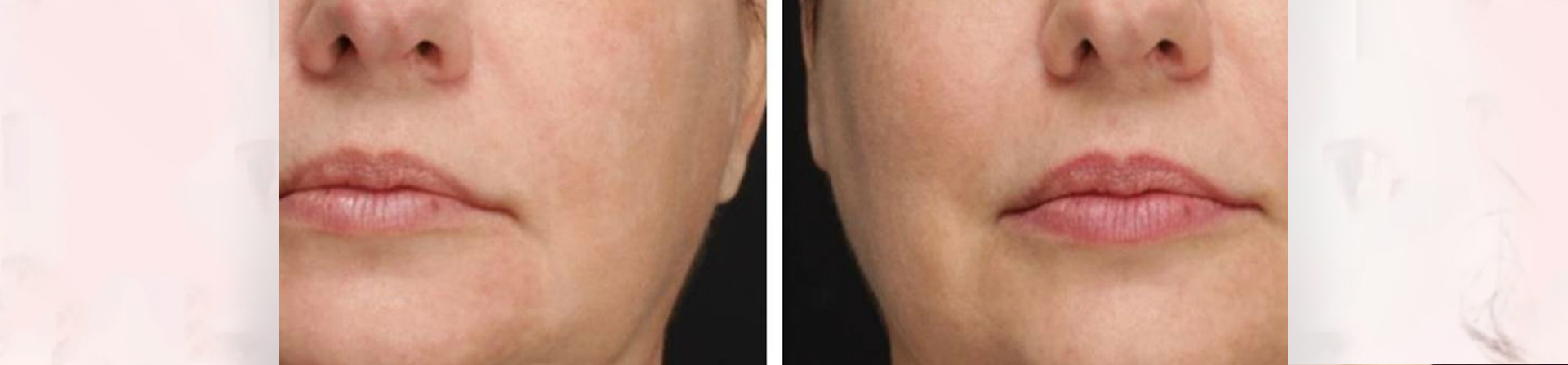 Best Skin Tightening Treatment Clinic in Bhubaneswar