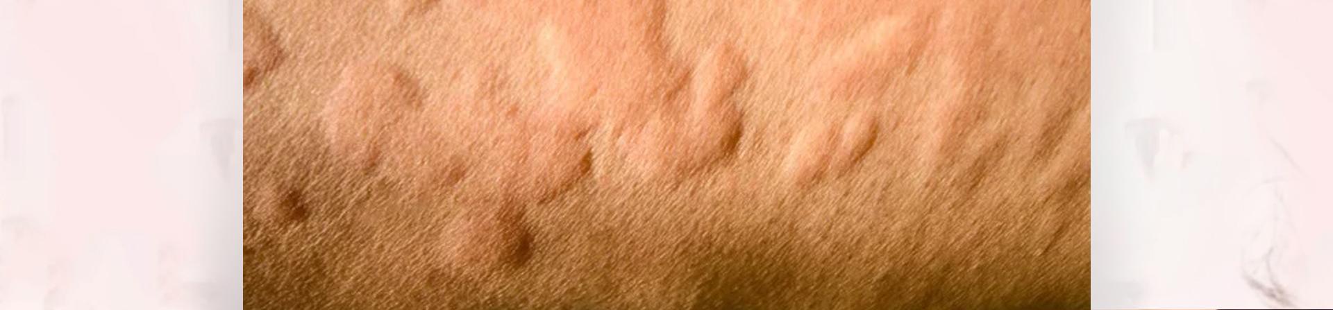 Ashu Skin Care| Best Skin Allergy Treatment in Bhubaneswar Odisha